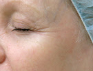 wrinkle treatment after